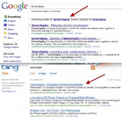Google'dan Bing'e Ağır Suçlama!